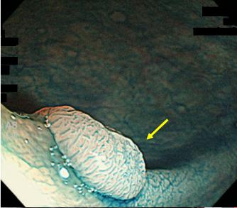 大腸内視鏡画像
