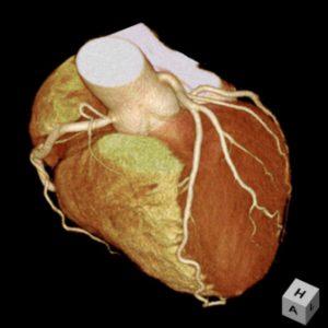 心臓CT検査