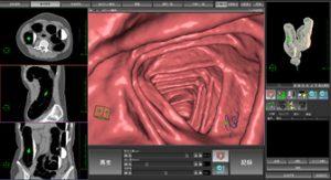 大腸3D-CT検査